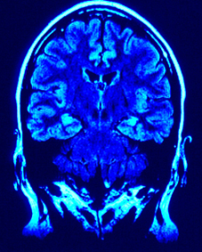 What Is Brain Injury?